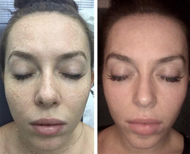 Fraxel Freckles Case 1 Front