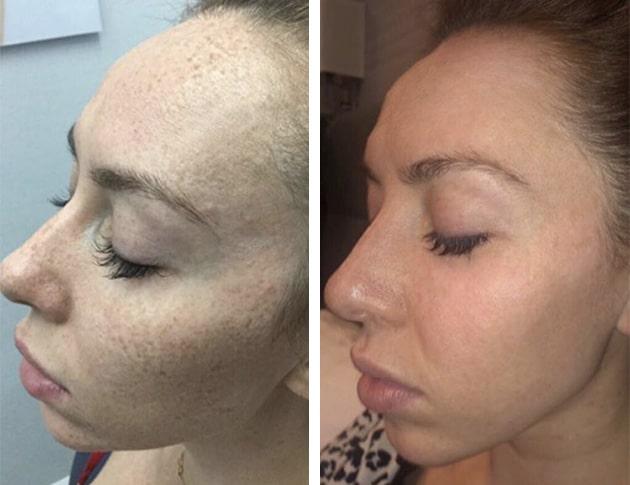 Fraxel Freckles Case 1 Oblique Left