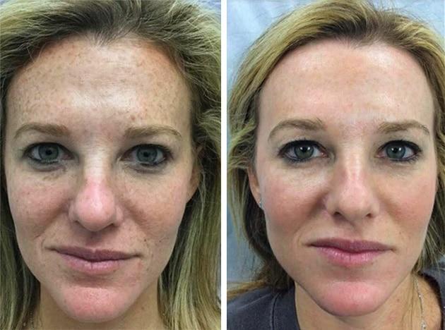 Fraxel Freckles Case 7