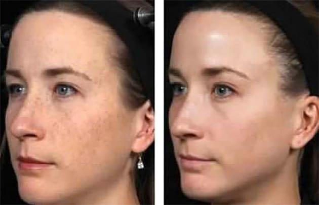Fraxel Freckles Case 8