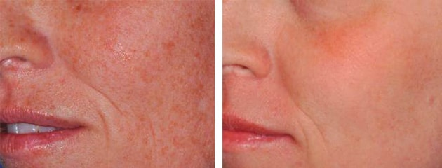 Before and after fraxel treatment on females cheeks