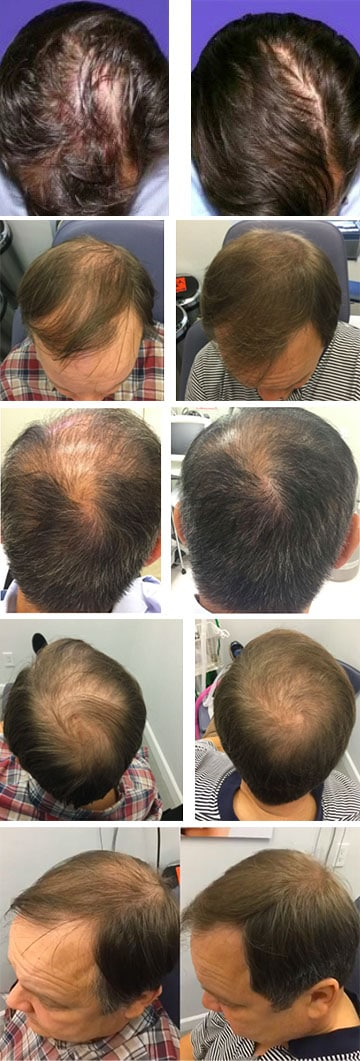 PRP Treatment Before and After Results