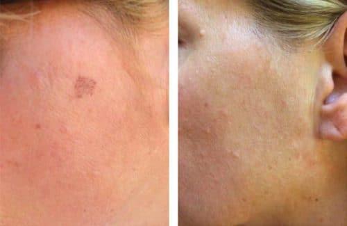 Piqo Spot Treatment Case 1