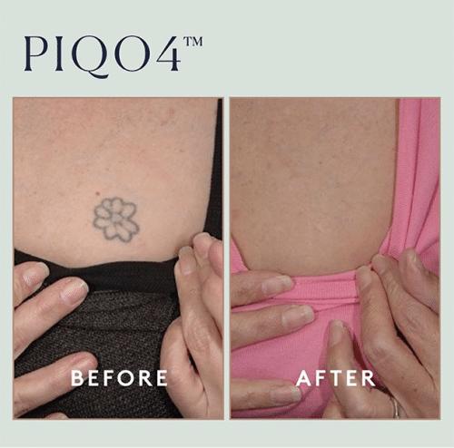 Piqo Tattoo Case 2