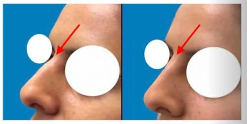 Silicone Nose Case 1