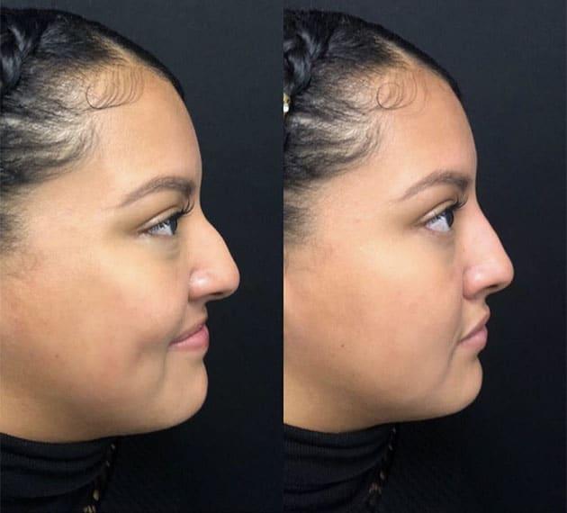 Silicone Nose Case 4
