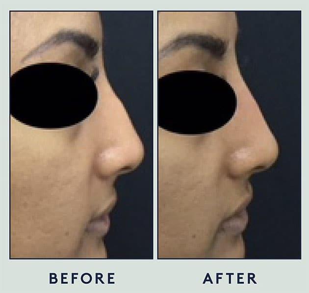 Silicone Nose Case 5