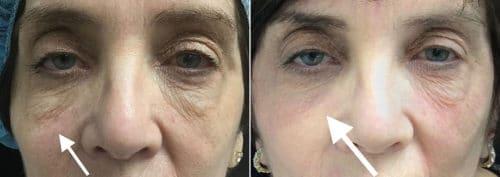 Carol Subnovii Under Left Eye BA Before After 500x177