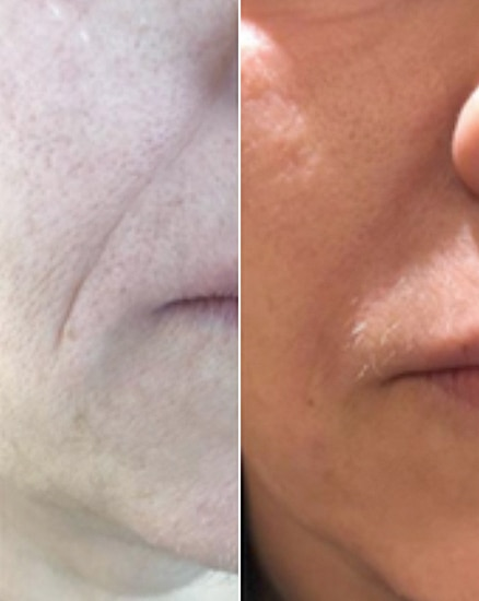 Subnovii Perioral Before After