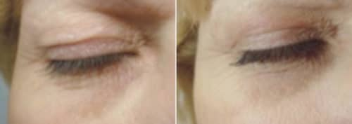 Upper Eyelid Subnovii2 Before After 500x177