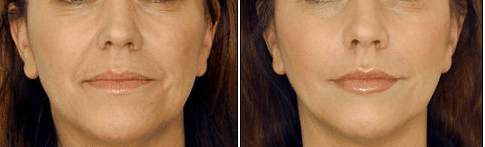Restylane Before/After