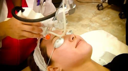 Coolpeel Treatment 500x281