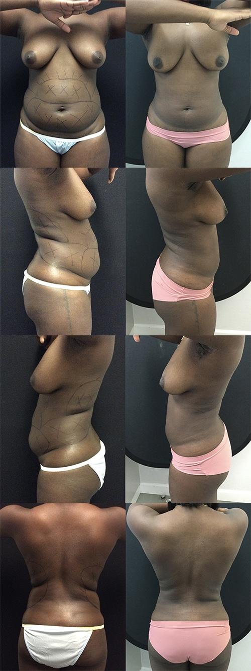 Liposuction C14 Complete Set