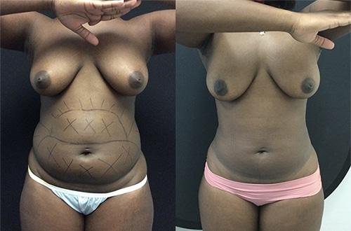 Liposuction C14 Front B1a1