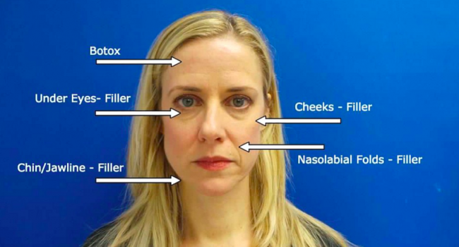 Liquid Facelift explanation